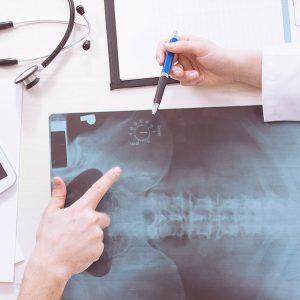 Peritaje Medico Gratis al solicitar el Informe Pericial
